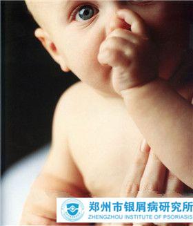 婴儿为什么会患上牛皮癣