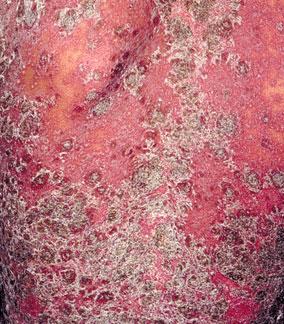 牛皮癣对人体有哪些损害