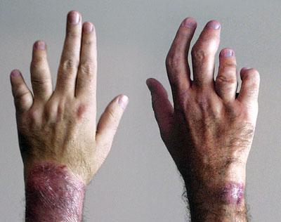 银屑病症状和治疗方法是什么