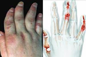 手部牛皮癣怎么护理