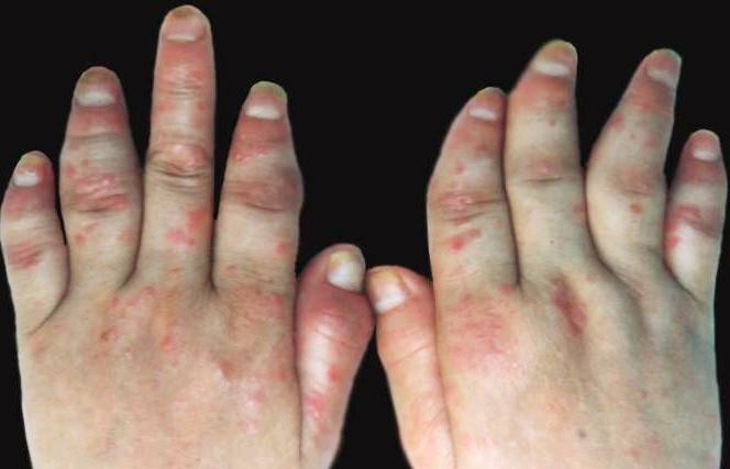 手部牛皮癣怎样护理
