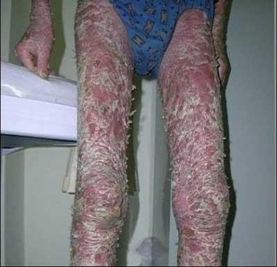 如何有效治愈腿部牛皮癣