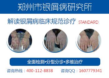 郑州银屑病研究所