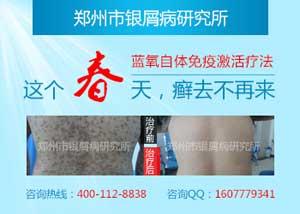 郑州市银屑病研究院